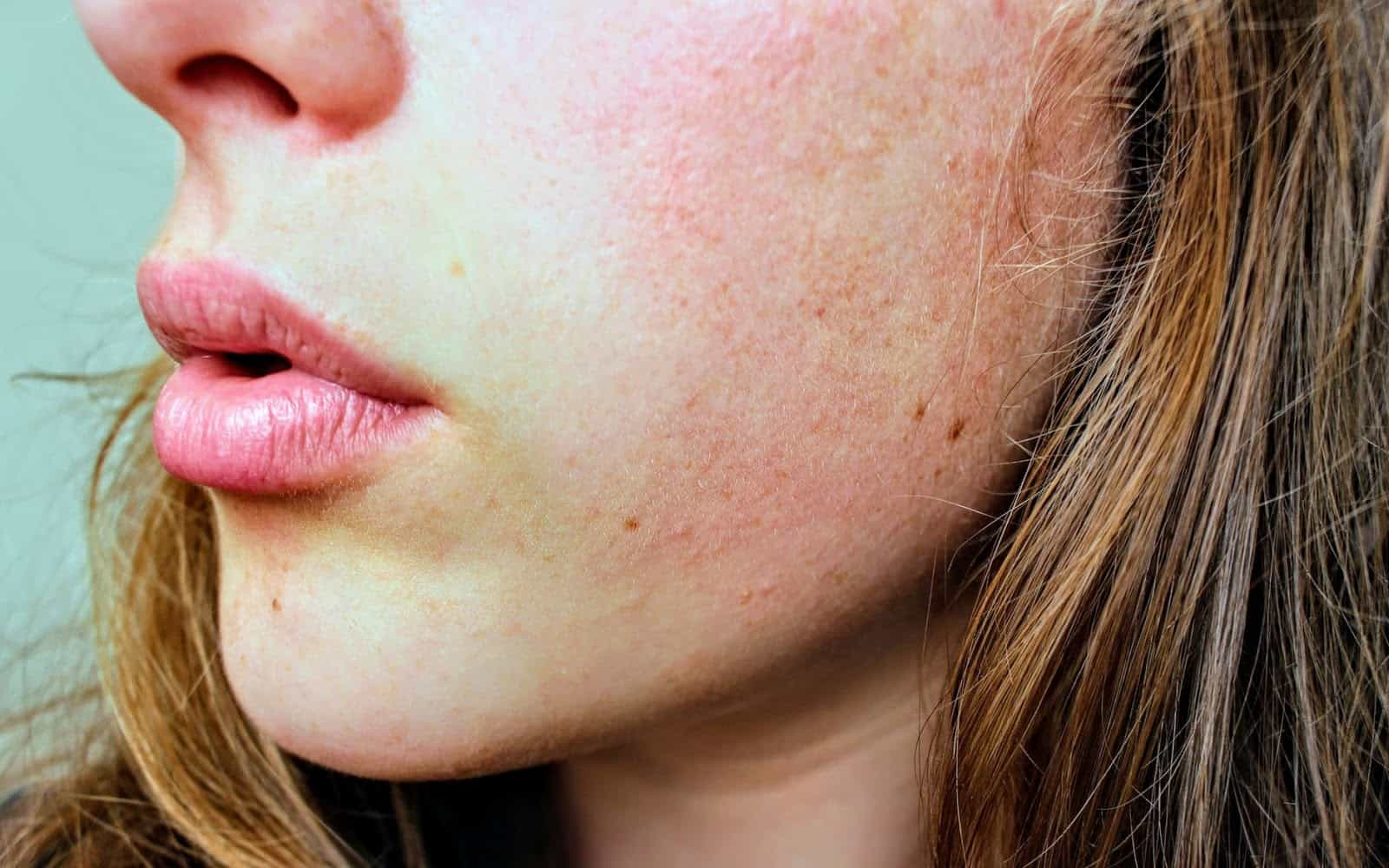 benefits of CBD for irritated skin